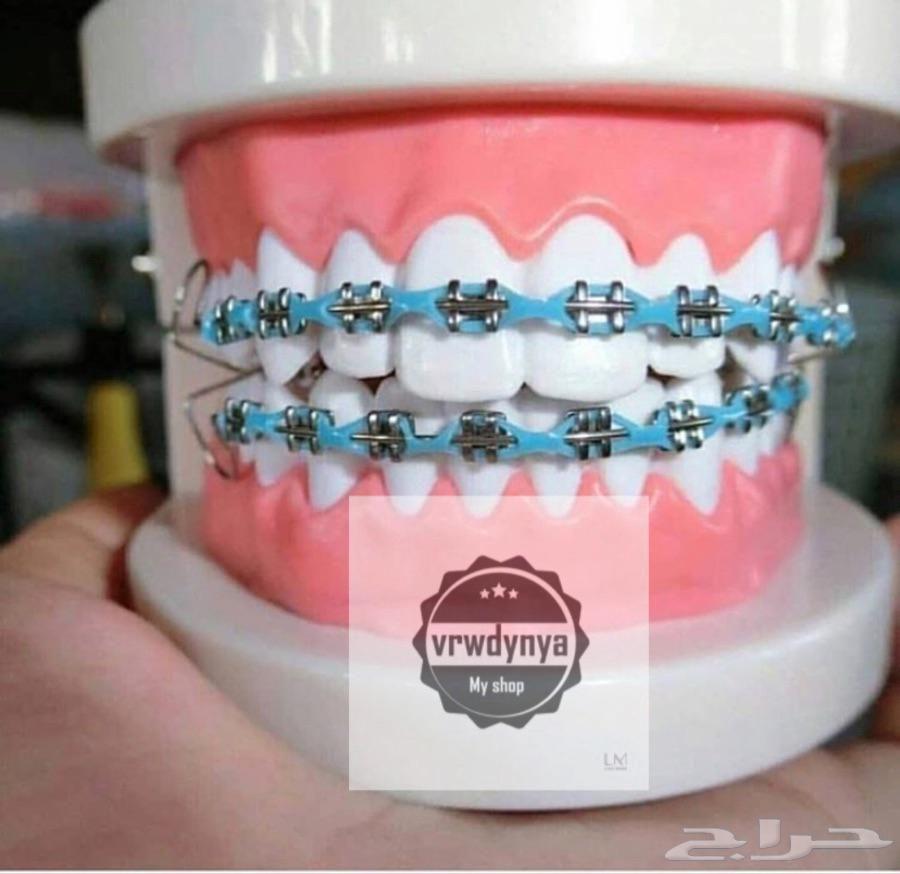 إشراق حراج تقويم اسنان زينه وطبي بسعر مميز للفكين والوان