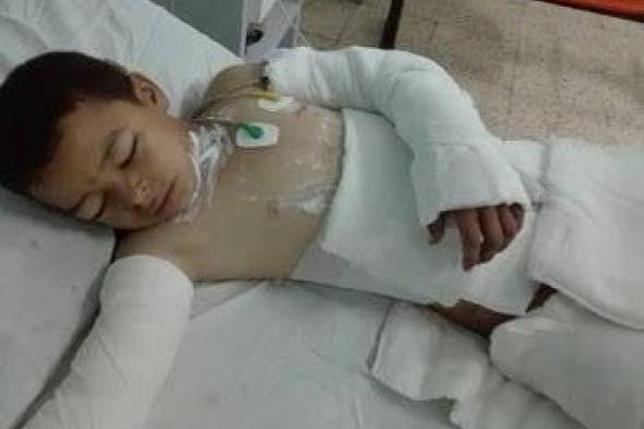 جريمة بشعة تهز مصر.. وفاة طفل بسبب التنمر بعدما أحرقه أقرانه بـ البنزين